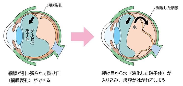 網膜剥離(横)