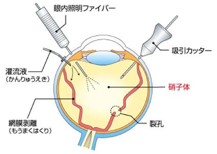 日帰り網膜・硝子体手術